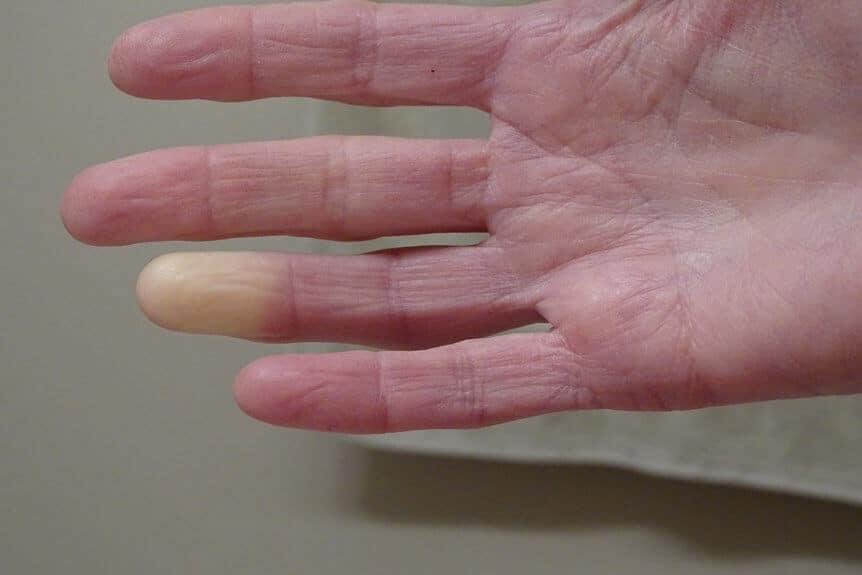Understanding Raynaud's Disease