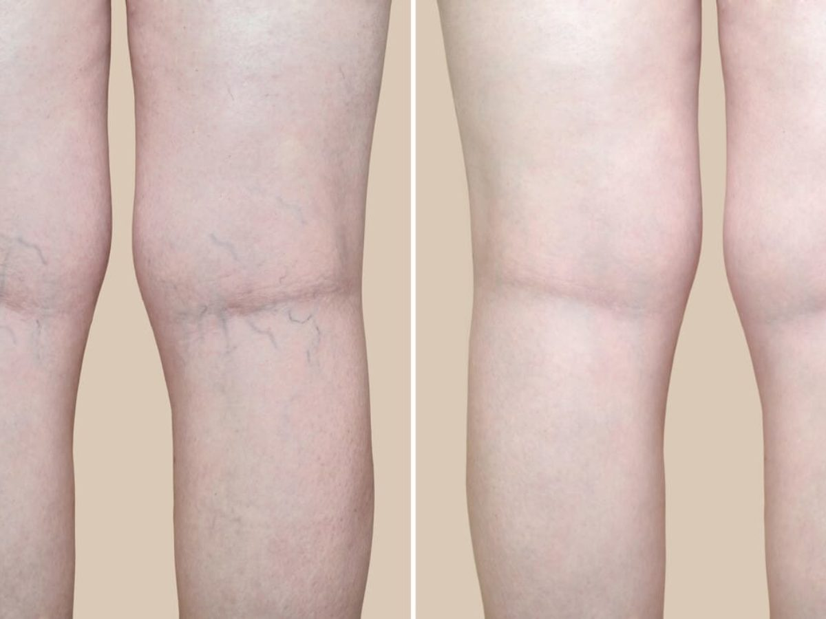 Benefits Of Laser Vein Treatment | Core Medical & Wellness