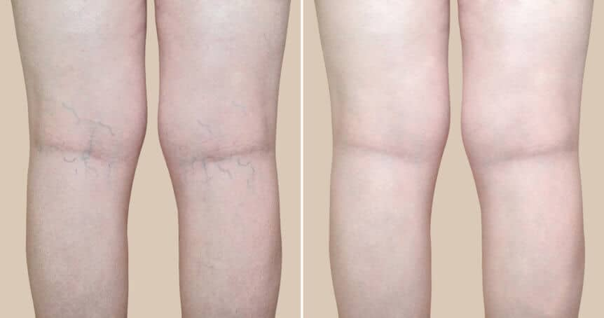 Legs Of Woman Before and After Varicose Vein Treatment