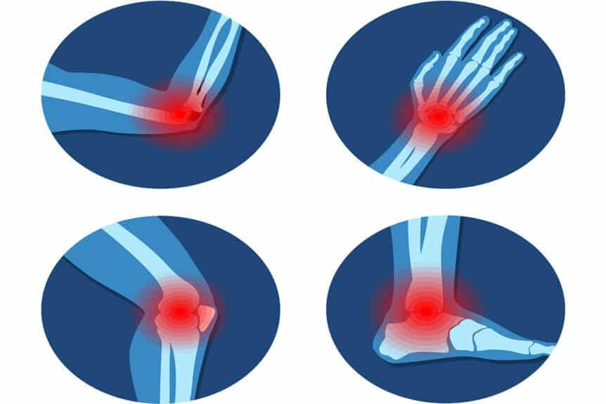 What Is Rheumatology?