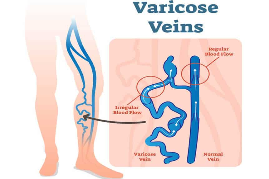 What You Need to Know About Varicose Veins