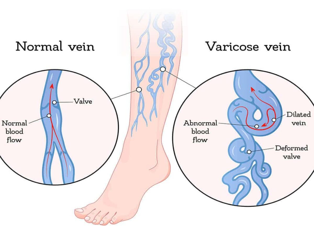 What Causes Varicose Veins Core Medical Wellness