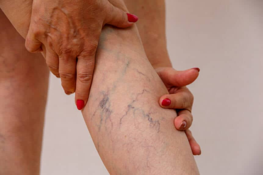 Close Up Of A Woman's Leg With Vericose Veins