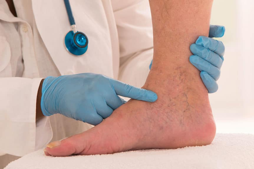Varicose Vein Presentation and Screening With Dr. Kim